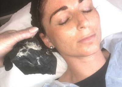 Dermaplaning after glow