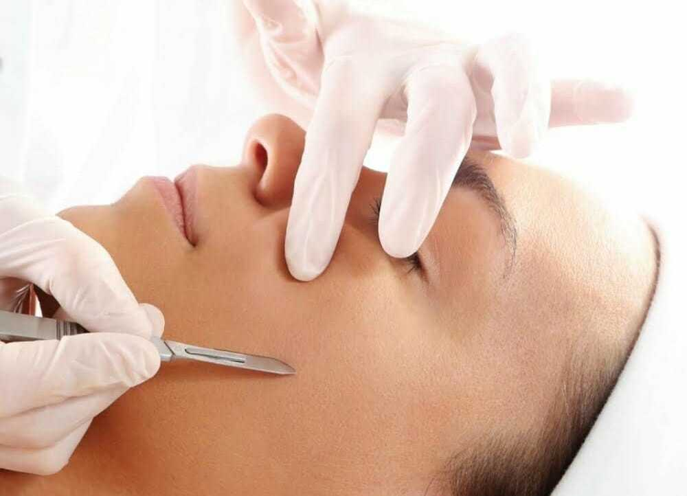 Dermaplaning in the West Midlands
