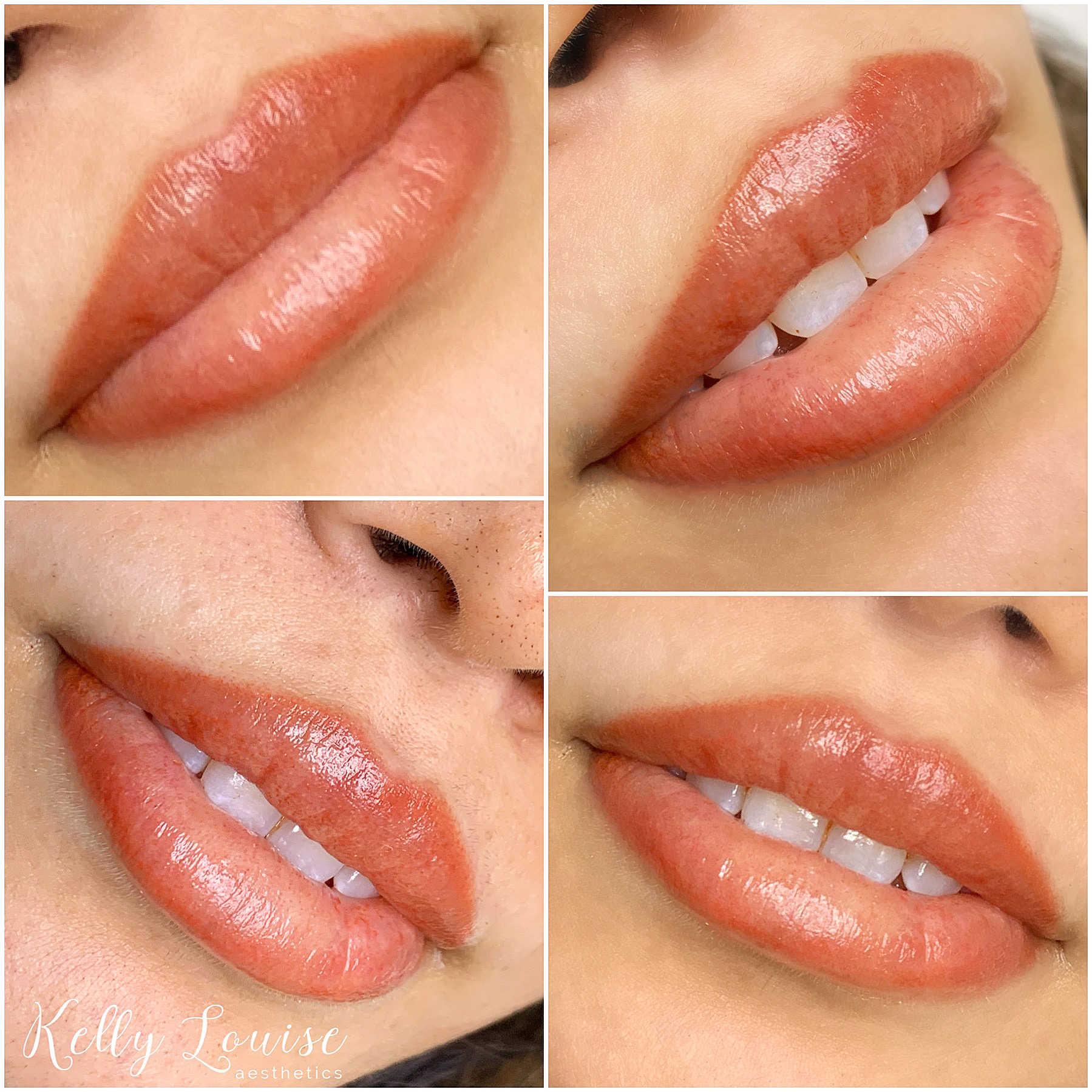 Full lips at Kelly Louise Aesthetics
