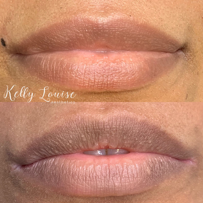 Lip Neutralising Results